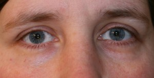 Circles Under Eyes